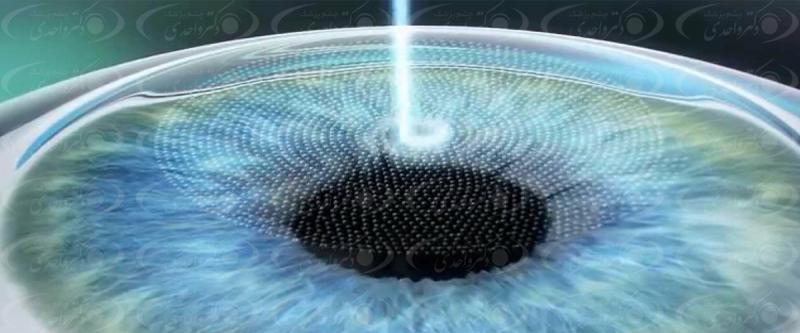 بررسی عمل لیزیک چشم