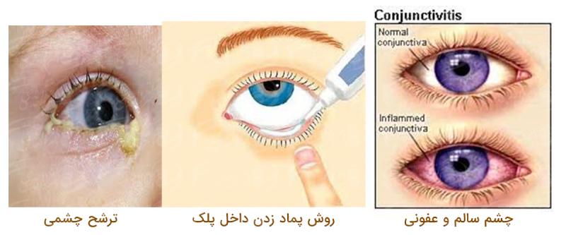 عفونت ملتحمه چشم و روش درمان قرمزی چشم