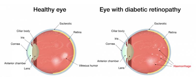 عوارض دیابت بر روی چشم یا رتینوپاتی دیابتی