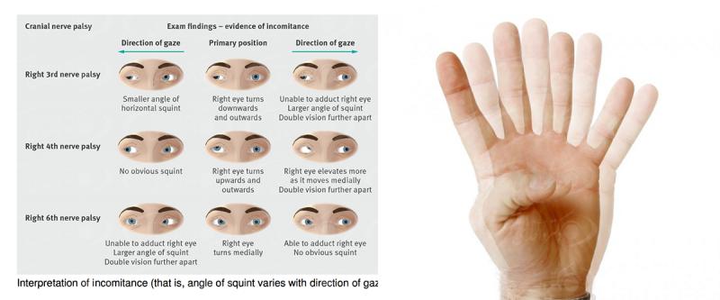 علت بیماری دوبینی چشم و روش درمان آن Diplopia