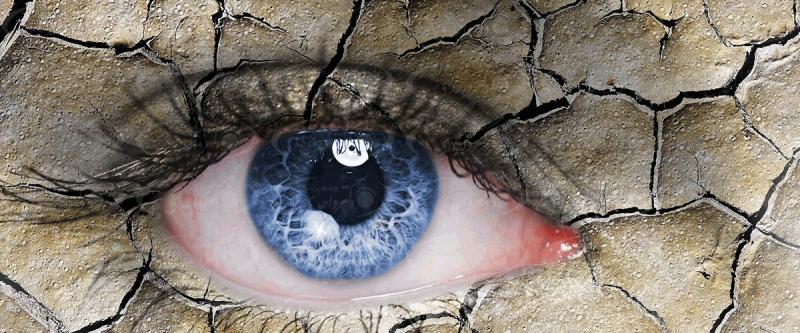 علت خشکی چشم و روش درمان آن