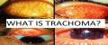 بیماری تراخم چشم و بیماری اگزوفتالمی