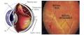 علت مهم پارگی شبکیه چشم و روش درمان