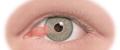 بیماری ناخنک چشم و پینگوکولا